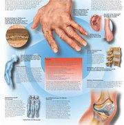 Affections rhumatismale